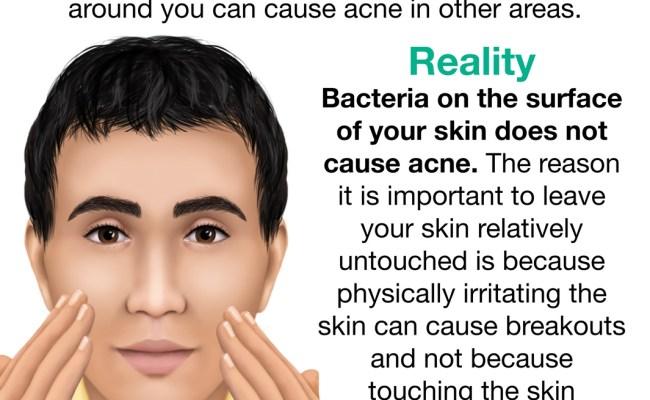 Acne Myths Acne Org