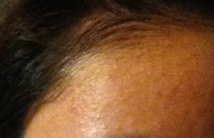 Recurring Little Bumps All Over Forehead Temples Pics