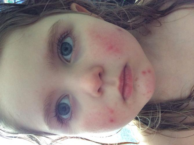 4 Year Old Acne No Answers From Doctors Pic Included