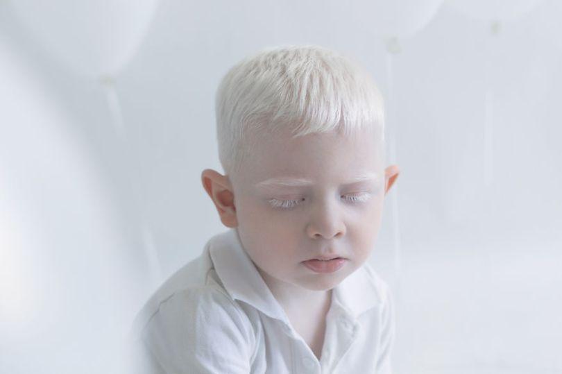 IMG 0115 s 582c42fb9ea82  880 - A beleza dos albinos