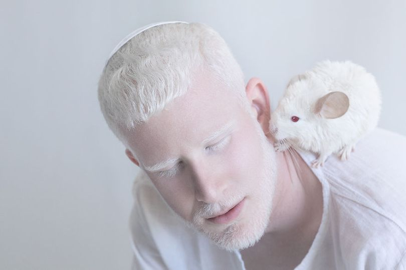 IMG 0404 s 582c430b6ce4a  880 - A beleza dos albinos