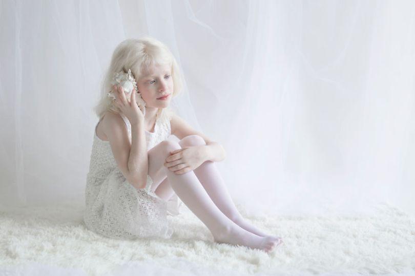 IMG 0628 s 582c432010f95  880 - A beleza dos albinos