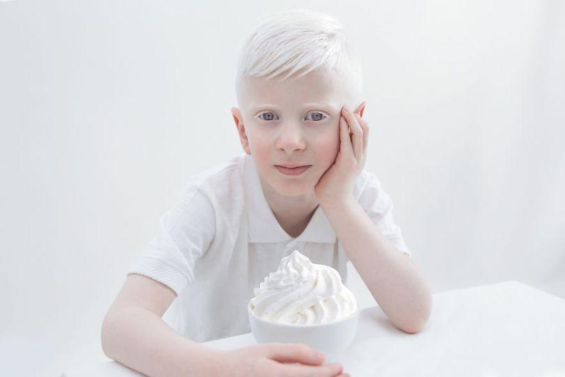 IMG 0034 s Nitay 59529eee0dc6e  880 - A beleza dos albinos