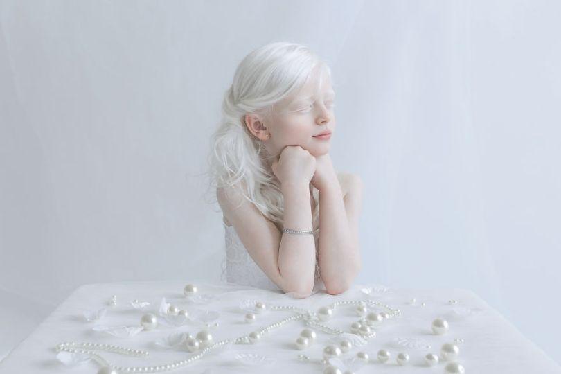 IMG 0495 s Yali 59529f12f099b  880 - A beleza dos albinos