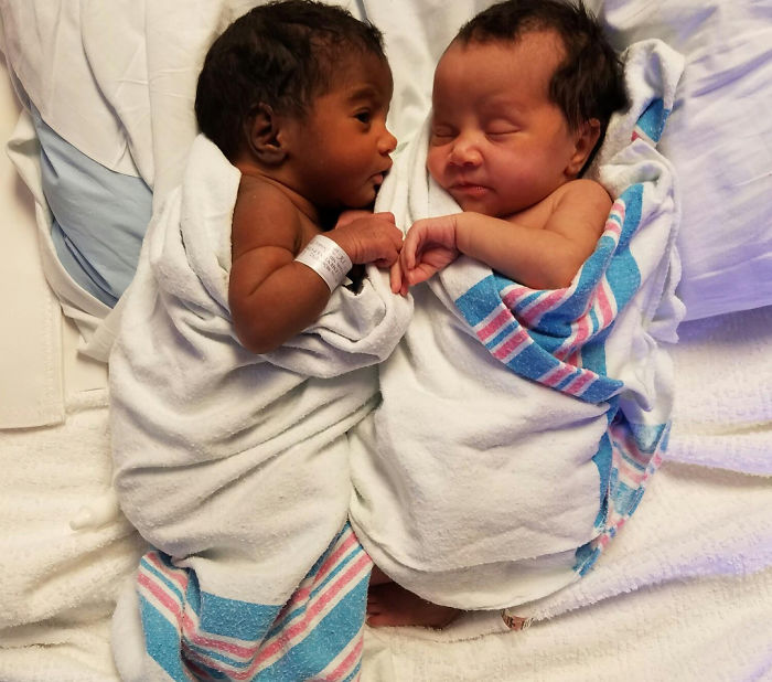 Twins with different skin colors are enchanting the internet and you will fall in love as well 5a1543828c1be  700 - Meninas gêmeas que conquistaram a Internet