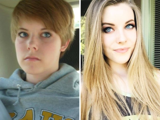 """22-5a81517825bdf__700 People Who Used To Be """"Ugly Ducklings"""" Share Their Transformations, And We Can Barely Recognize Them (New Pics) Design Random"""
