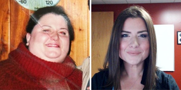 """28-5a8155e24bef3__700 People Who Used To Be """"Ugly Ducklings"""" Share Their Transformations, And We Can Barely Recognize Them (New Pics) Design Random"""