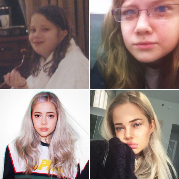 """60-5a816b489df6d__700 People Who Used To Be """"Ugly Ducklings"""" Share Their Transformations, And We Can Barely Recognize Them (New Pics) Design Random"""