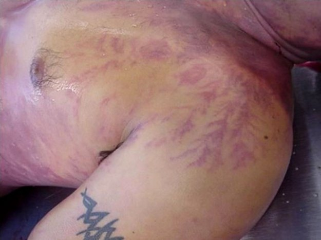Scars-After-Surviving-Lightning-Strike-Lichtenberg-Figures-Photos-13-5b6d30e7ba247__700 19 People Who Survived Getting Struck By Lightning Show What It Does To Your Skin Design Random