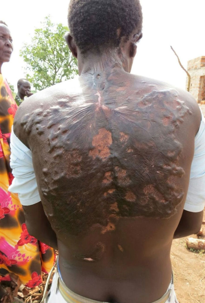 Scars-After-Surviving-Lightning-Strike-Lichtenberg-Figures-Photos-14-5b6d30bc58b81__700 19 People Who Survived Getting Struck By Lightning Show What It Does To Your Skin Design Random