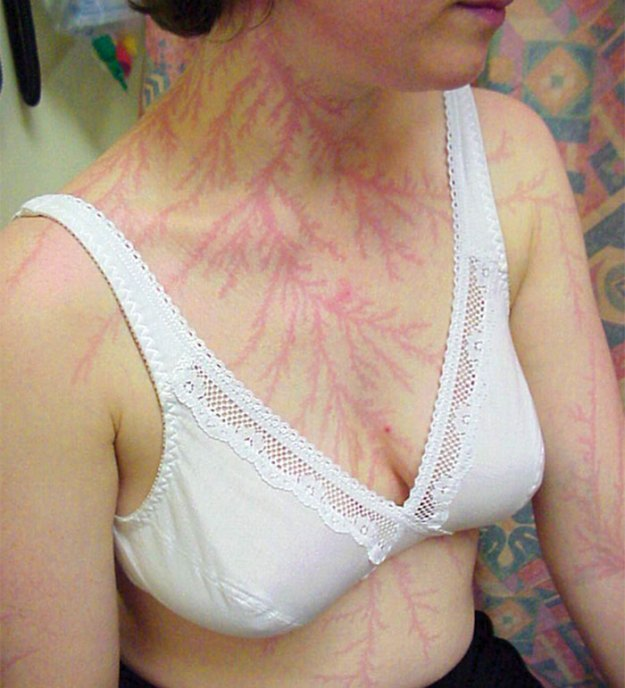 Scars-After-Surviving-Lightning-Strike-Lichtenberg-Figures-Photos-18 19 People Who Survived Getting Struck By Lightning Show What It Does To Your Skin Design Random
