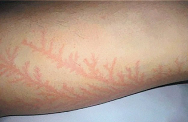 Scars-After-Surviving-Lightning-Strike-Lichtenberg-Figures-Photos-3-5b6d321fb308f__700 19 People Who Survived Getting Struck By Lightning Show What It Does To Your Skin Design Random