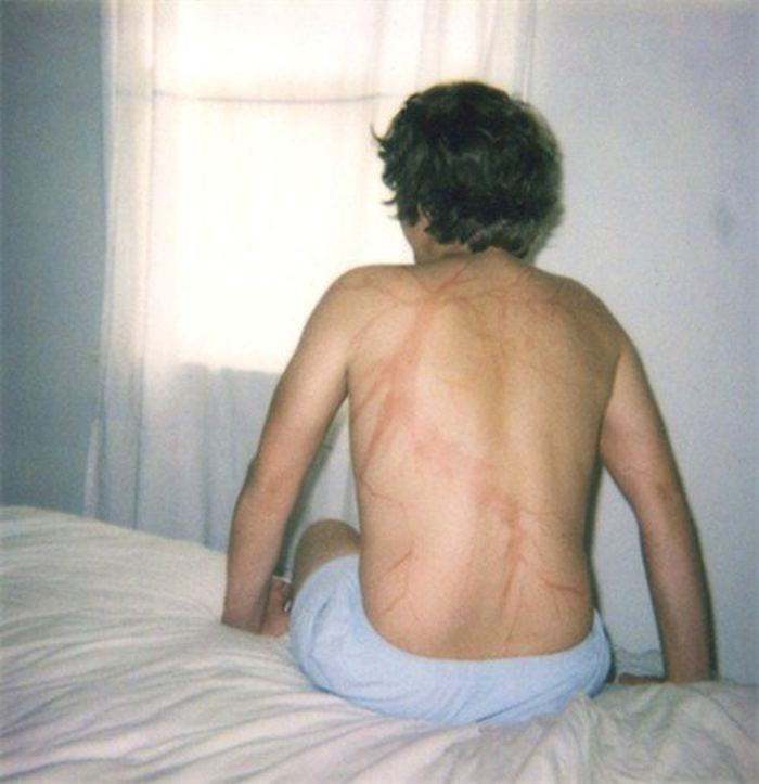 Scars-After-Surviving-Lightning-Strike-Lichtenberg-Figures-Photos-8-5b6d30dfb628a__700 19 People Who Survived Getting Struck By Lightning Show What It Does To Your Skin Design Random