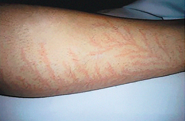 scars-after-surviving-lightning-strike-lichtenberg-figures-photos-5b6d3644d7e4f__700 19 People Who Survived Getting Struck By Lightning Show What It Does To Your Skin Design Random