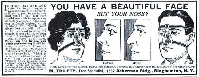weird things women did vintage pics 13 5b630c5d15033  700 - Coisas estranhas do passado a que as mulheres se sujeitaram em nome da beleza (Não se assuste!)