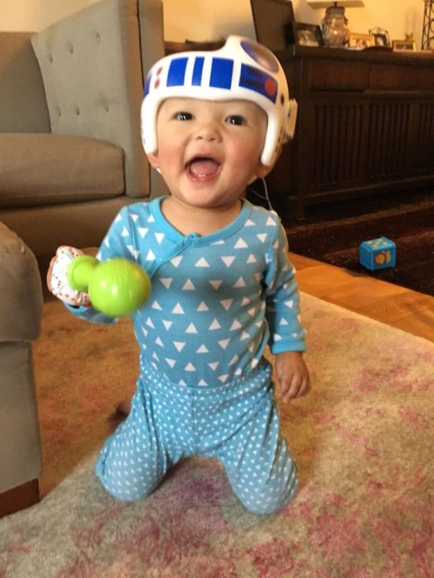 children-son-helmet-support-celebrity-chrissy-teigen-5c07ca7b07df6__700 Chrissy Teigen Has Shared A Photo Of Her Son With A Head-Shaping Helmet, People From All Around The World Respond Design Random