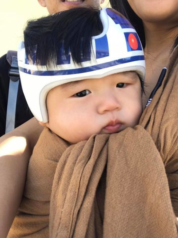 children-son-helmet-support-celebrity-chrissy-teigen-5c07cf9a5b529__700 Chrissy Teigen Has Shared A Photo Of Her Son With A Head-Shaping Helmet, People From All Around The World Respond Design Random