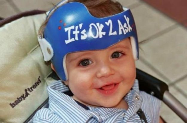 children-son-helmet-support-celebrity-chrissy-teigen-5c07d06d7a813__700 Chrissy Teigen Has Shared A Photo Of Her Son With A Head-Shaping Helmet, People From All Around The World Respond Design Random