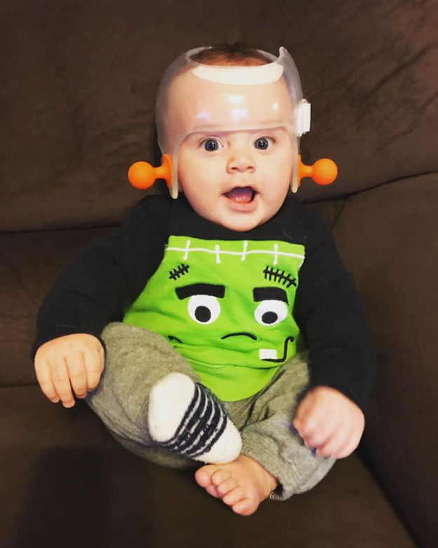 children-son-helmet-support-celebrity-chrissy-teigen-5c07d0ac7fc13__700 Chrissy Teigen Has Shared A Photo Of Her Son With A Head-Shaping Helmet, People From All Around The World Respond Design Random