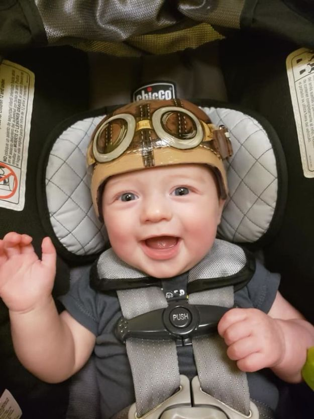 children-son-helmet-support-celebrity-chrissy-teigen-5c07d8cbad942__700 Chrissy Teigen Has Shared A Photo Of Her Son With A Head-Shaping Helmet, People From All Around The World Respond Design Random