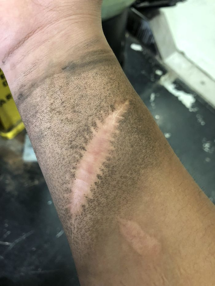 My Scar Doesn't Get Dirty When I'm At Work