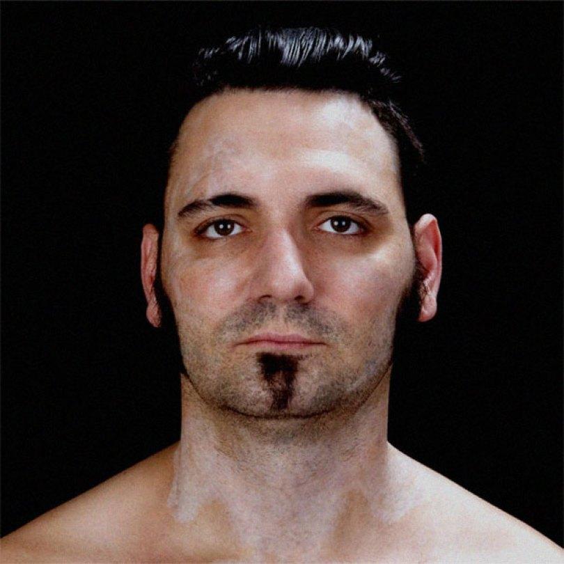 former racist nazi face tattoo removal bryon widner 8 5d4c001662919  605 - Relembre o ex-Skinhead que se arrependeu de suas tatuagens depois de ser pai