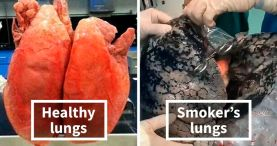 Image result for black lung