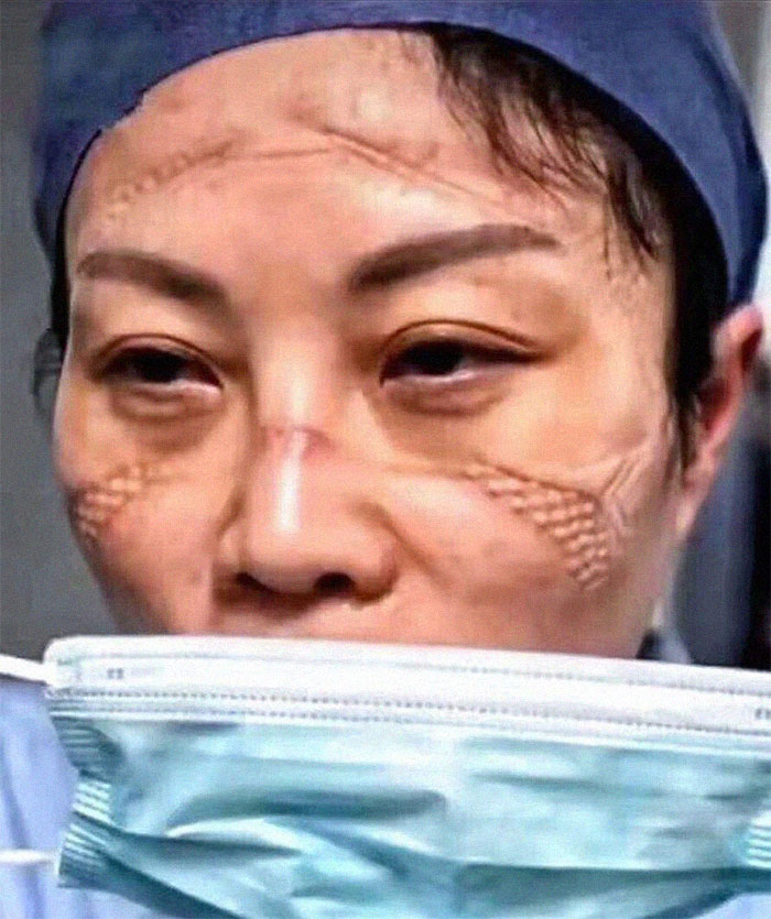 Nurse's Face After Taking Protective Gear Off