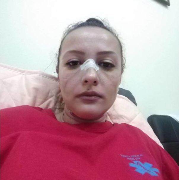 Marks On Nurse Face