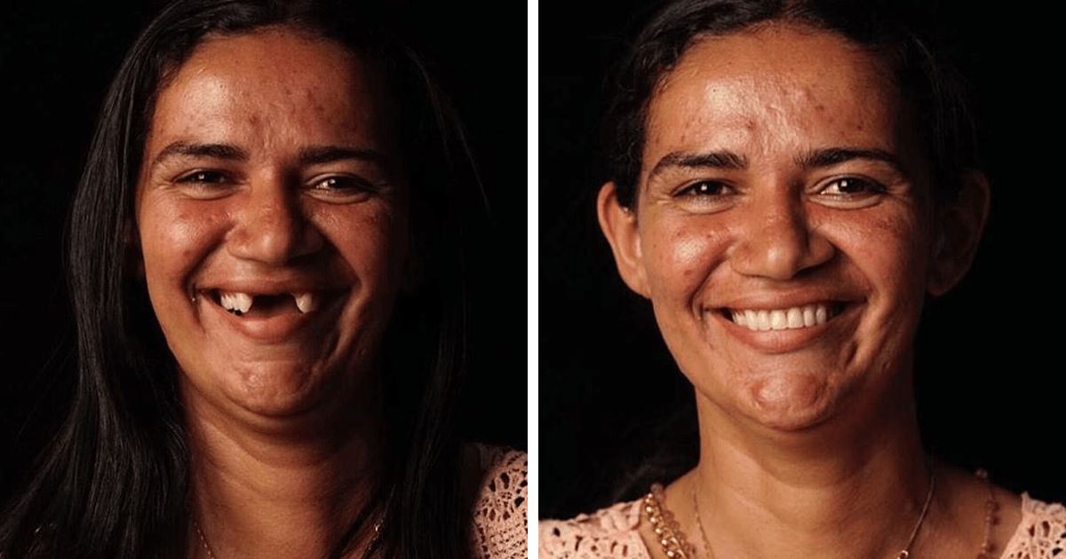Brazilian Dentist Travels To Fix The Teeth Of Less-fortunate People For Free And Here Are 34 New Transformations