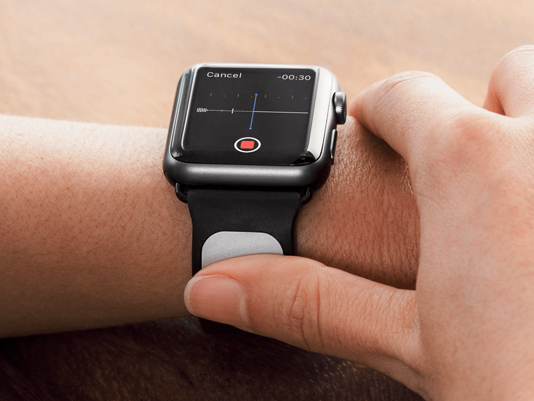 A former Googler is working on an Apple Watch accessory