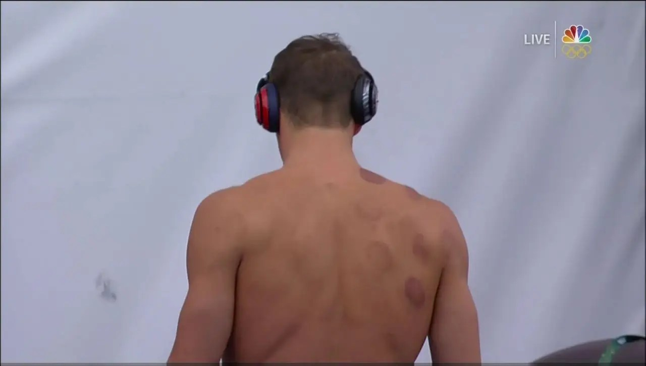 Why Michael Phelps and other Olympians have big red ...