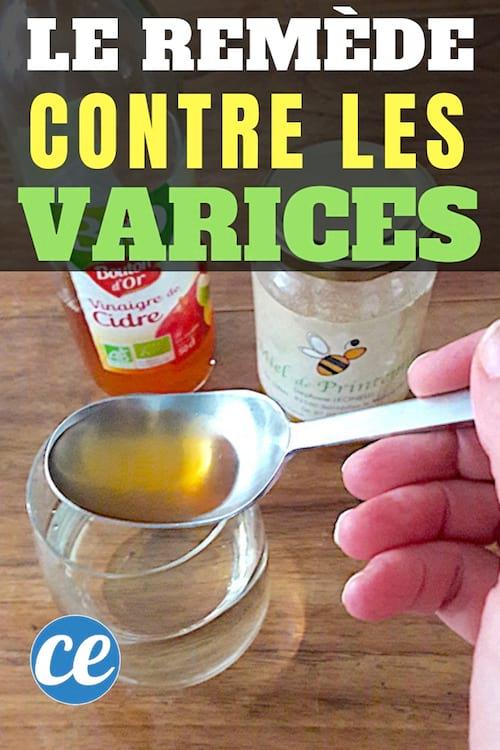 Vinaigre De Cidre Varices Avis : vinaigre, cidre, varices, Enfin, Remède, Grand-Mère, Efficace, Contre, Varices.