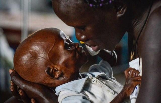 To zdjęcie pokazuje, że musimy pomóc Sudanowi Pd.