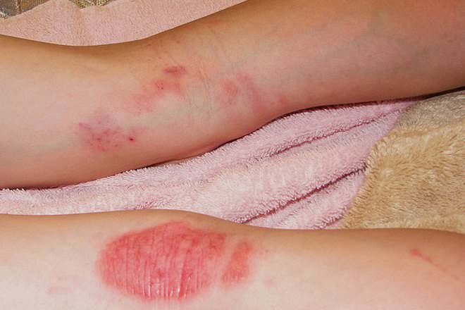 Eczema vs Psoriasis - Difference and Comparison | Diffen