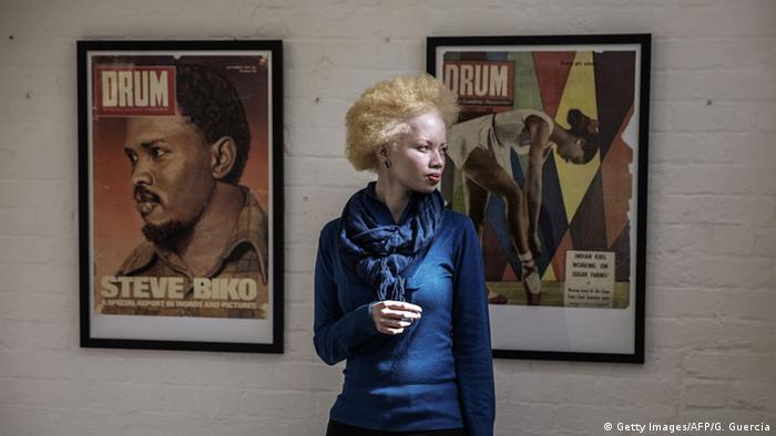 Südafrika Albinismus - Model und Juristin Thando Hopa (Foto: AFP)