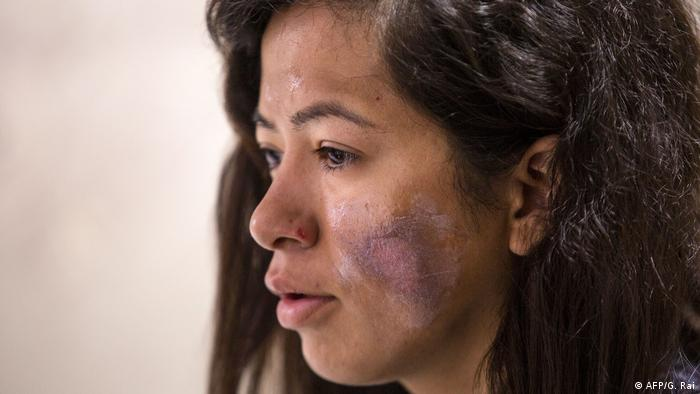 Ameesha Chauhan, an Indian mountaineer, suffered burns to her face while trying to climb Everest.