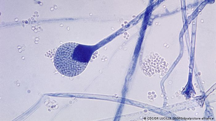 Champignon Noir Inde Covid : Covid 19 In India Patients Hit By Rare Black Fungus Science In Depth Reporting On Science And Technology Dw 12 05 2021