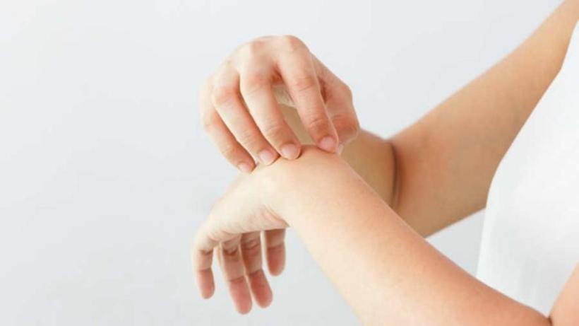 Dermatilomanía: la compulsión por rascarse y pellizcarse
