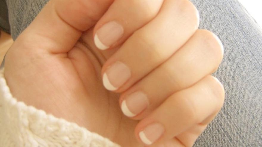 El aspecto de mis uñas, ¿qué dice sobre mi salud?