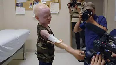 Tanzanian albino victims of brutal superstition-driven attacks get prosthetic limbs