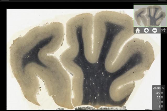Lo strano caso del cervello di Einstein.