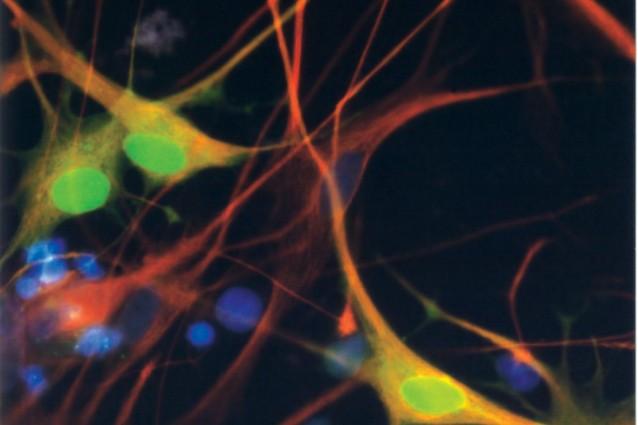 L'invecchiamento diventa un processo reversibile: dalla Francia un metodo per riprogrammare le cellule a stadio embrionale.