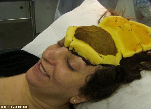 Le rimuovono la fronte per una rara forma di cancro la malattia la sfigura