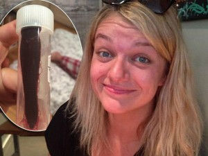 Perde sangue dal naso per un mese: aveva una sanguisuga nella narice.