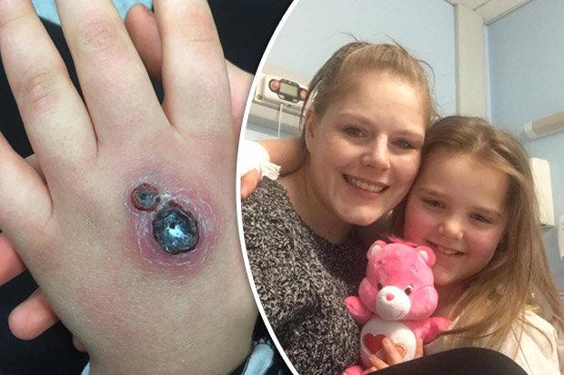 Bimba di 8 anni morsa da un ragno velenoso ora non vuole pi tornare a casa