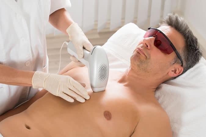 Man hair removal
