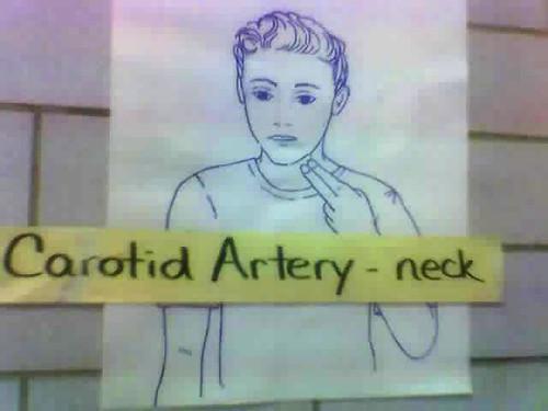 Carotid Artery - neck
