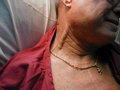 Blood collection from external jugular vein | The Medicine Box