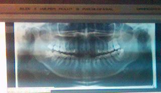 teeth_xray